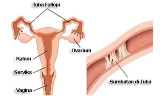 √ Tuba Fallopi : Pengertian, Fungsi, Struktur dan Penyebab Terlengkap