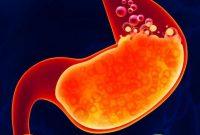 √ Gastritis : Pengertian, Tanda, Gejala, Faktor Penyebab dan Jenis Terlengkap